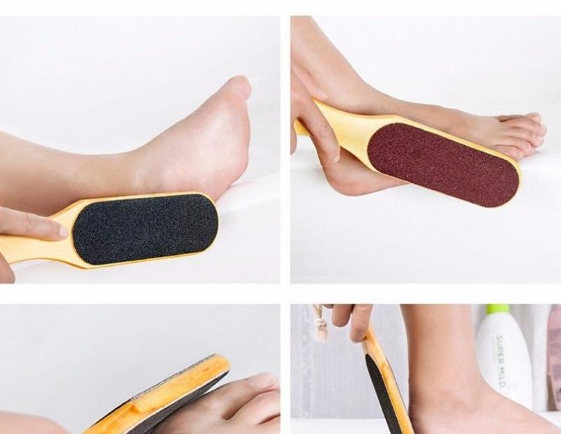 Kaip gydyti onichomikozę kojose