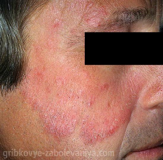 vörös foltok jelennek meg folyamatosan az arcon vörös foltok a bőrön fehérednek